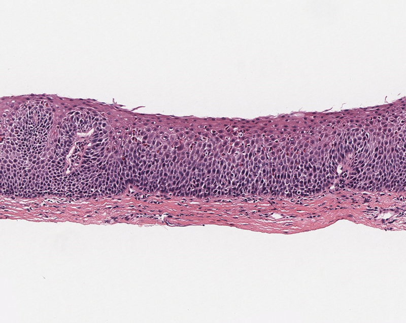 photomicrograph of an esophageal biopsy from a patient with an EGID